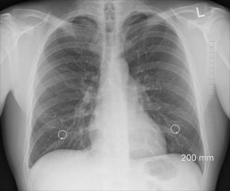 Kim jest pulmonolog i kiedy warto skorzystać z jego pomocy?